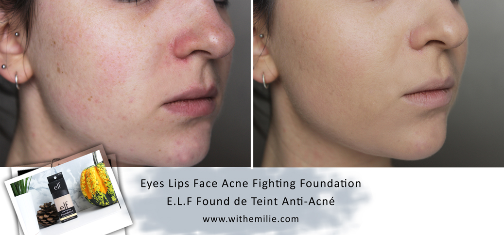 E.L.F fond de teint anti acné - Acne Fighting Foundation eyeslipsface (7) Before After